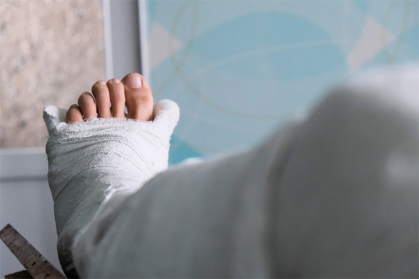 Slip and Fall Head Injuries in Hartford